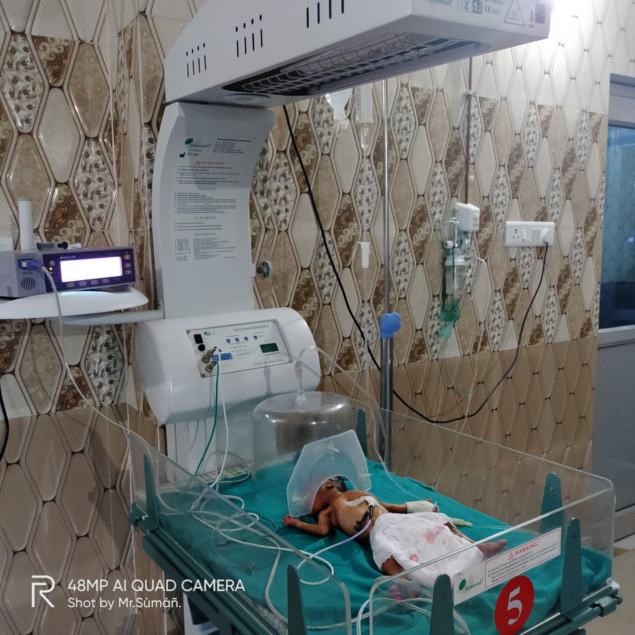 जेपी हॉस्पिटल के गायनोकोलॉजिस्ट  एवं चाइल्ड स्पेशलिस्ट डॉक्टर एवं हॉस्पिटल के अनुभवी प्रजनन कराने वाली टीम ने  कर दिखाया यह कमाल
